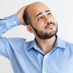 Qué es la alopecia y tratamiento para evitar la caída del pelo